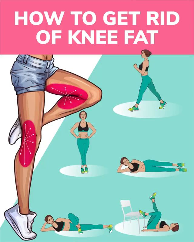 How to Get Rid of Knee Fat